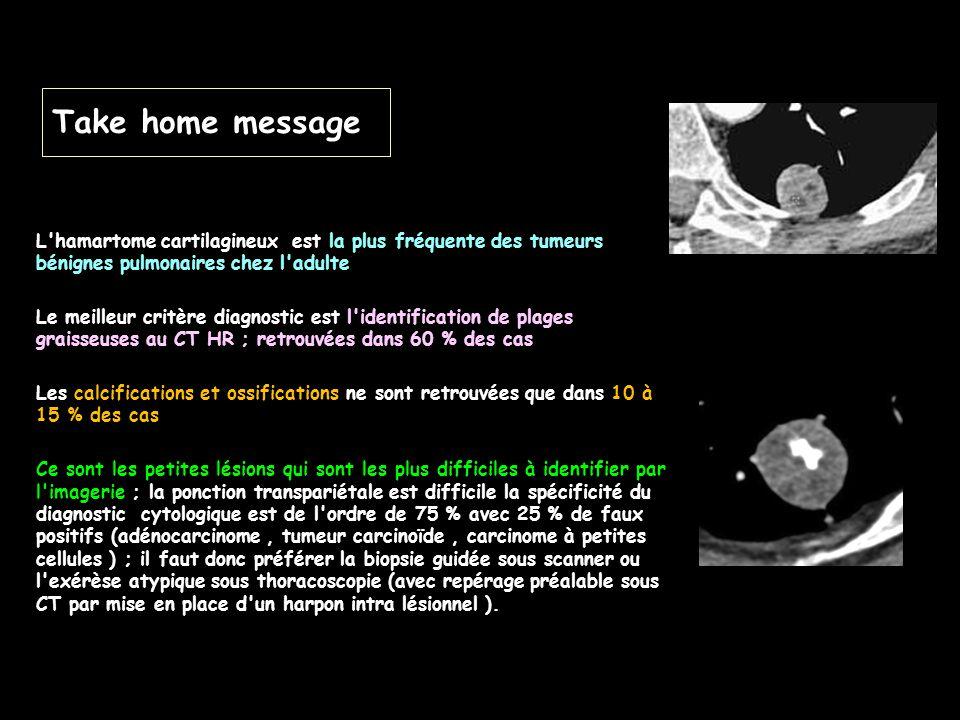 Take home message L'hamartome cartilagineux est la plus fréquente des tumeurs bénignes pulmonaires chez l'adulte Le meilleur critère diagnostic est l'
