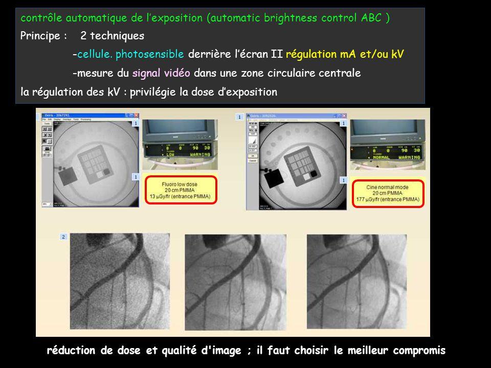 contrôle automatique de l'exposition (automatic brightness control ABC ) Principe : 2 techniques -cellule. photosensible derrière l'écran II régulatio