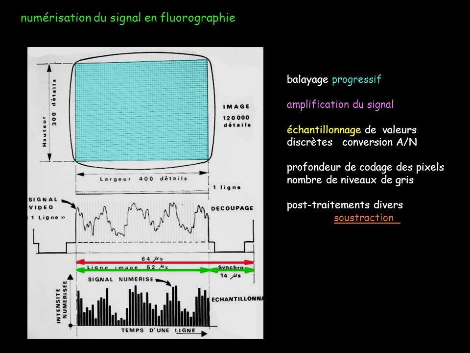 numérisation du signal en fluorographie balayage progressif amplification du signal échantillonnage de valeurs discrètes conversion A/N profondeur de