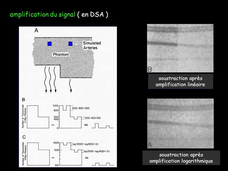 amplification du signal ( en DSA ) soustraction après amplification linéaire soustraction après amplification logarithmique