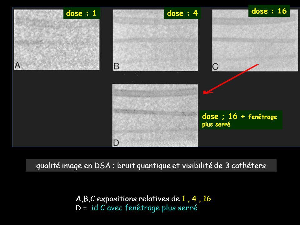 qualité image en DSA : bruit quantique et visibilité de 3 cathéters A,B,C expositions relatives de 1, 4, 16 D = id C avec fenêtrage plus serré dose :