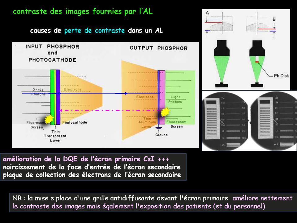 contraste des images fournies par l'AL causes de perte de contraste dans un AL amélioration de la DQE de l'écran primaire CsI +++ noircissement de la