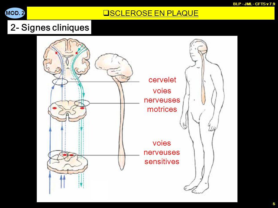 MOD. 2 BLP - JML - CFTS v 7.9 5 cervelet voies nerveuses motrices voies nerveuses sensitives  SCLEROSE EN PLAQUE 2- Signes cliniques