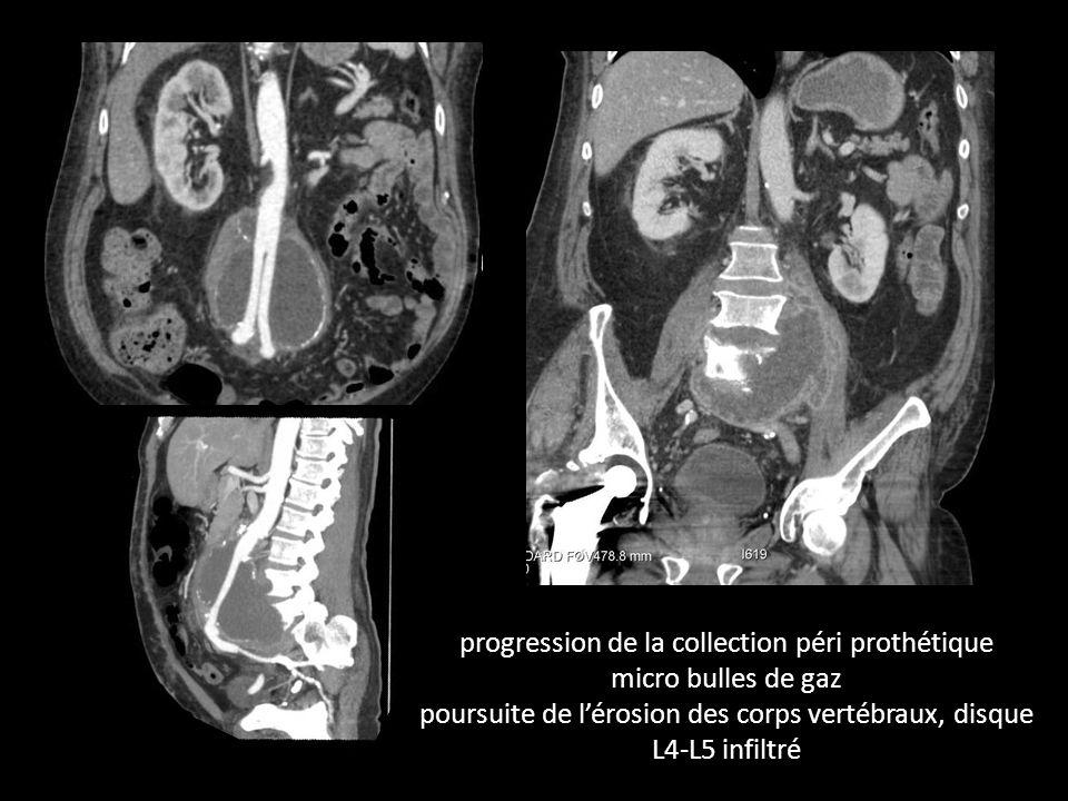 progression de la collection péri prothétique micro bulles de gaz poursuite de l'érosion des corps vertébraux, disque L4-L5 infiltré