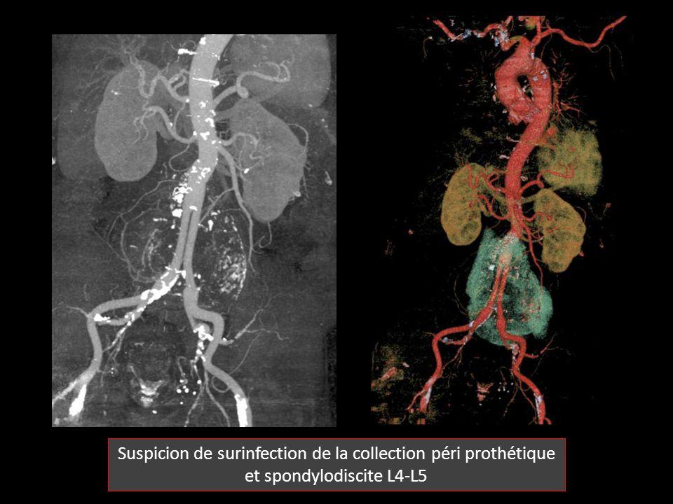 Suspicion de surinfection de la collection péri prothétique et spondylodiscite L4-L5