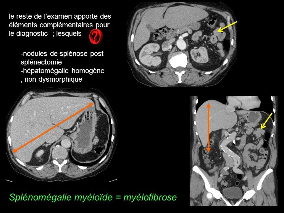 Splénomégalie myéloïde = myélofibrose le reste de l examen apporte des éléments complémentaires pour le diagnostic ; lesquels -nodules de splénose post splénectomie -hépatomégalie homogène, non dysmorphique