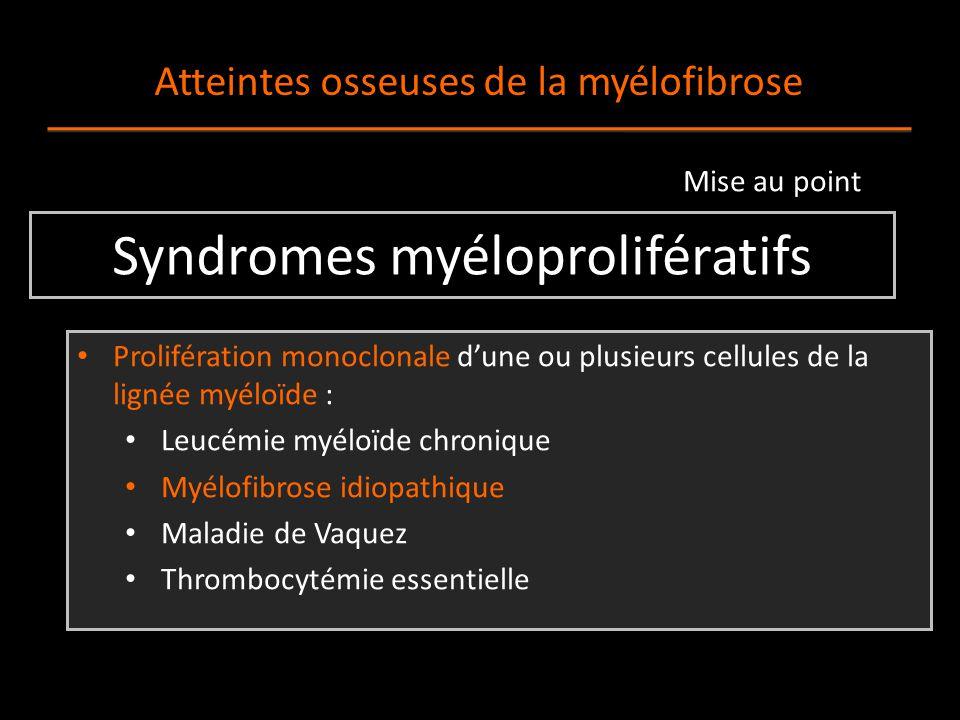 Syndromes myéloprolifératifs Prolifération monoclonale d'une ou plusieurs cellules de la lignée myéloïde : Leucémie myéloïde chronique Myélofibrose idiopathique Maladie de Vaquez Thrombocytémie essentielle Atteintes osseuses de la myélofibrose Mise au point