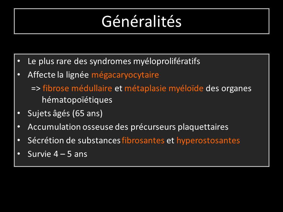 Généralités Le plus rare des syndromes myéloprolifératifs Affecte la lignée mégacaryocytaire => fibrose médullaire et métaplasie myéloïde des organes