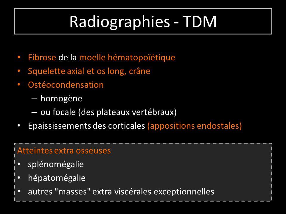 Radiographies - TDM Fibrose de la moelle hématopoïétique Squelette axial et os long, crâne Ostéocondensation – homogène – ou focale (des plateaux vertébraux) Epaississements des corticales (appositions endostales) Atteintes extra osseuses splénomégalie hépatomégalie autres masses extra viscérales exceptionnelles