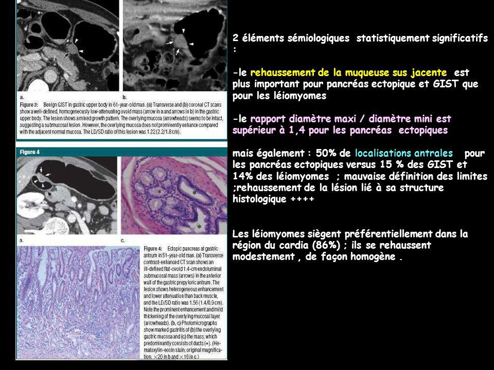 2 éléments sémiologiques statistiquement significatifs : -le rehaussement de la muqueuse sus jacente est plus important pour pancréas ectopique et GIS