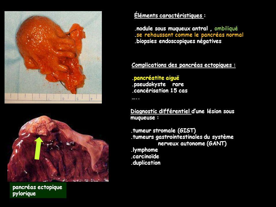 Complications des pancréas ectopiques :.pancréatite aiguë.pseudokyste rare.cancérisation 15 cas ….. Diagnostic différentiel d'une lésion sous muqueuse