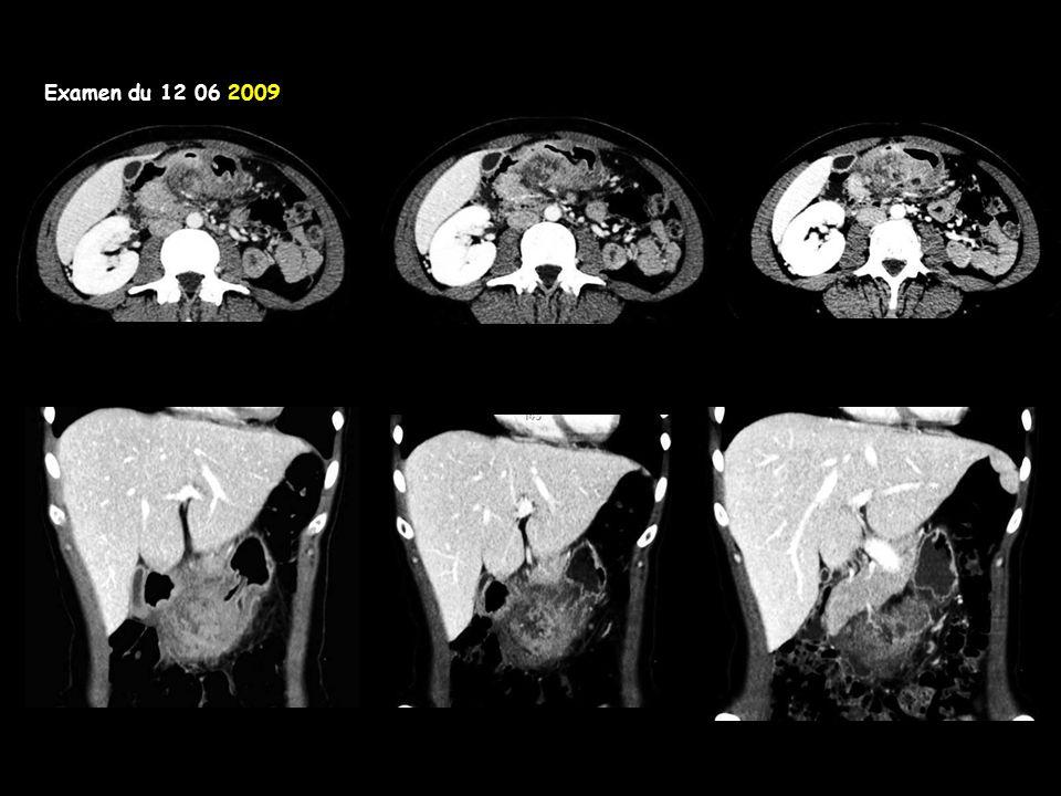 Examen du 12 06 2009 avec balisage opaque gastrique Après 2 ans d'évolution,au décours d'un épisode d'acutisation avec tableau pseudo-perforatif et retentissement sur l'état général, la patiente est opérée par gastrectomie des 2/3