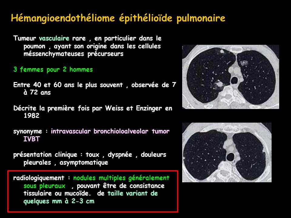 Tumeur vasculaire rare, en particulier dans le poumon, ayant son origine dans les cellules méssenchymateuses précurseurs 3 femmes pour 2 hommes Entre