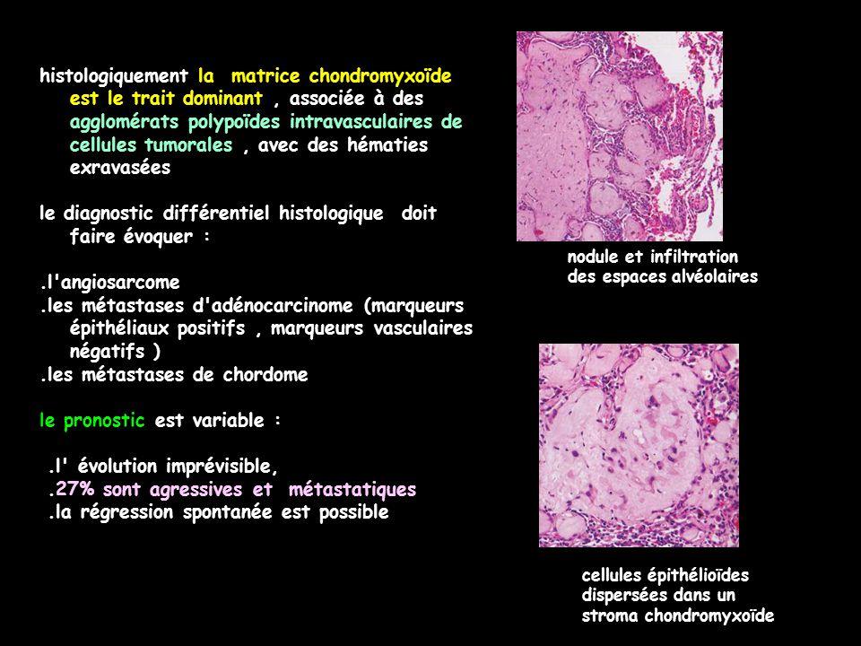 histologiquement la matrice chondromyxoïde est le trait dominant, associée à des agglomérats polypoïdes intravasculaires de cellules tumorales, avec d