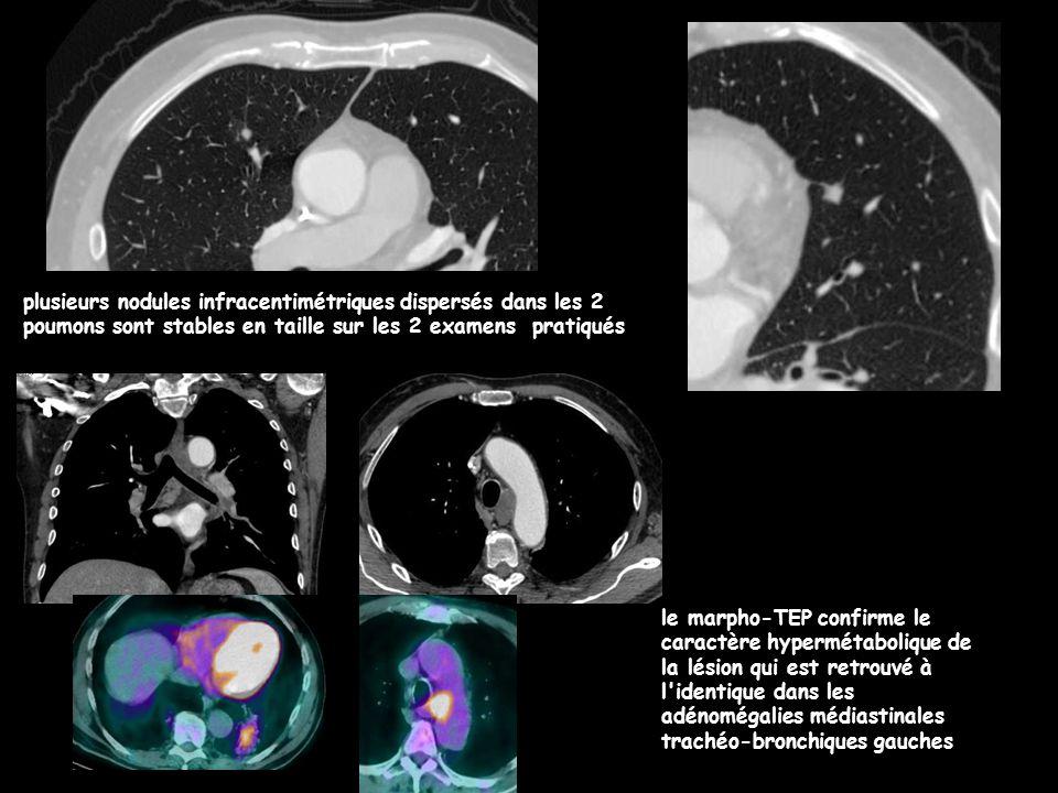 plusieurs nodules infracentimétriques dispersés dans les 2 poumons sont stables en taille sur les 2 examens pratiqués le marpho-TEP confirme le caract