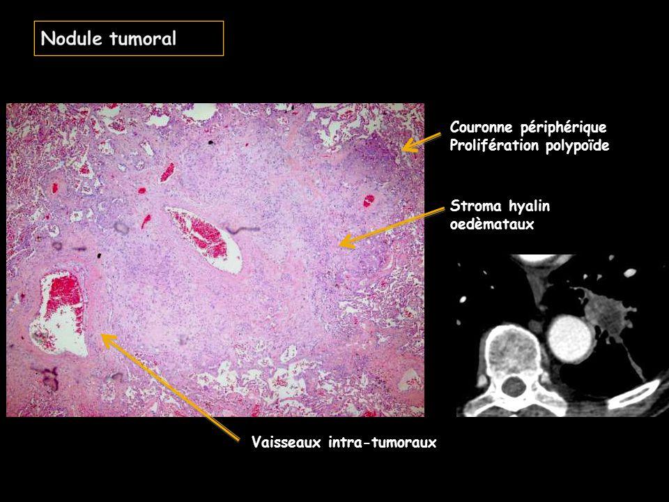 Couronne du nodule tumoral: prolifération polypoïde Nécrose avec aspect fantomatique des cellules: atypique dans une nécrose tumorale Stroma hyalin oedèmateux
