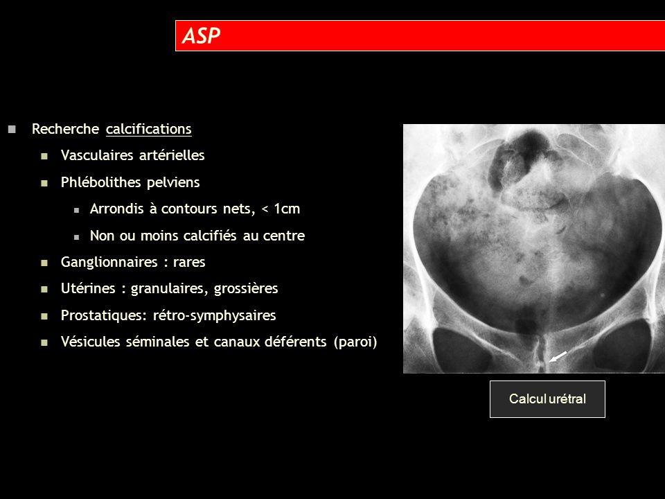 Recherche calcifications Vasculaires artérielles Phlébolithes pelviens Arrondis à contours nets, < 1cm Non ou moins calcifiés au centre Ganglionnaires