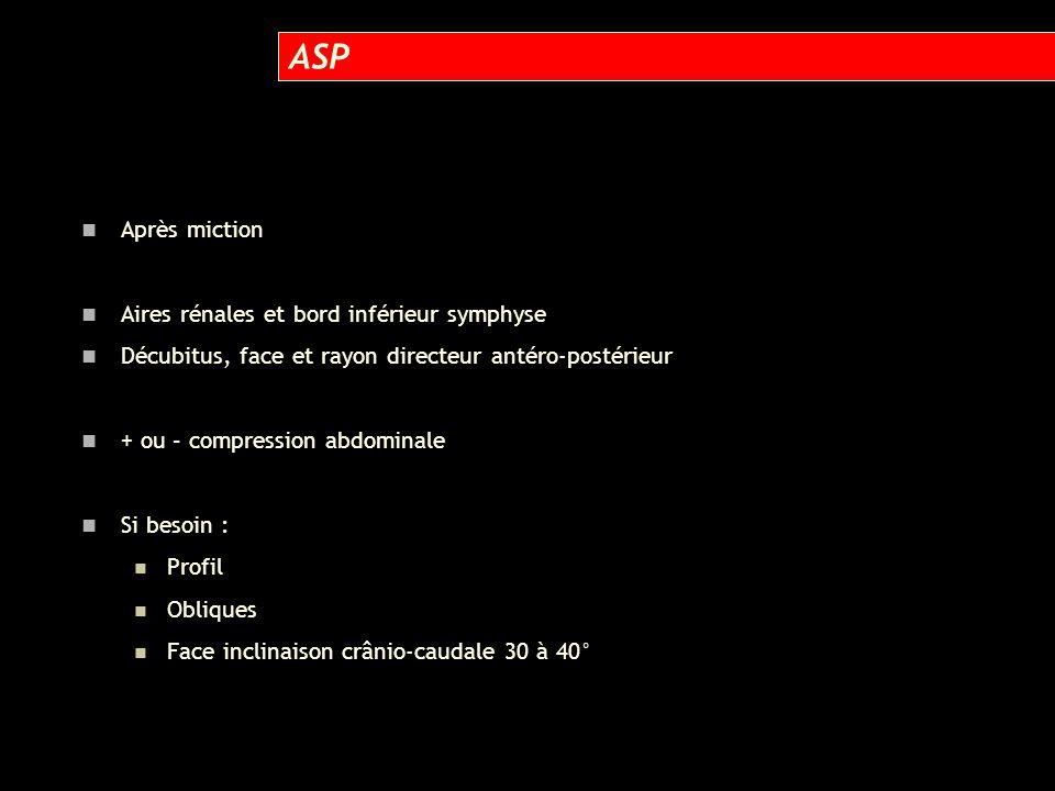 Après miction Aires rénales et bord inférieur symphyse Décubitus, face et rayon directeur antéro-postérieur + ou – compression abdominale Si besoin :