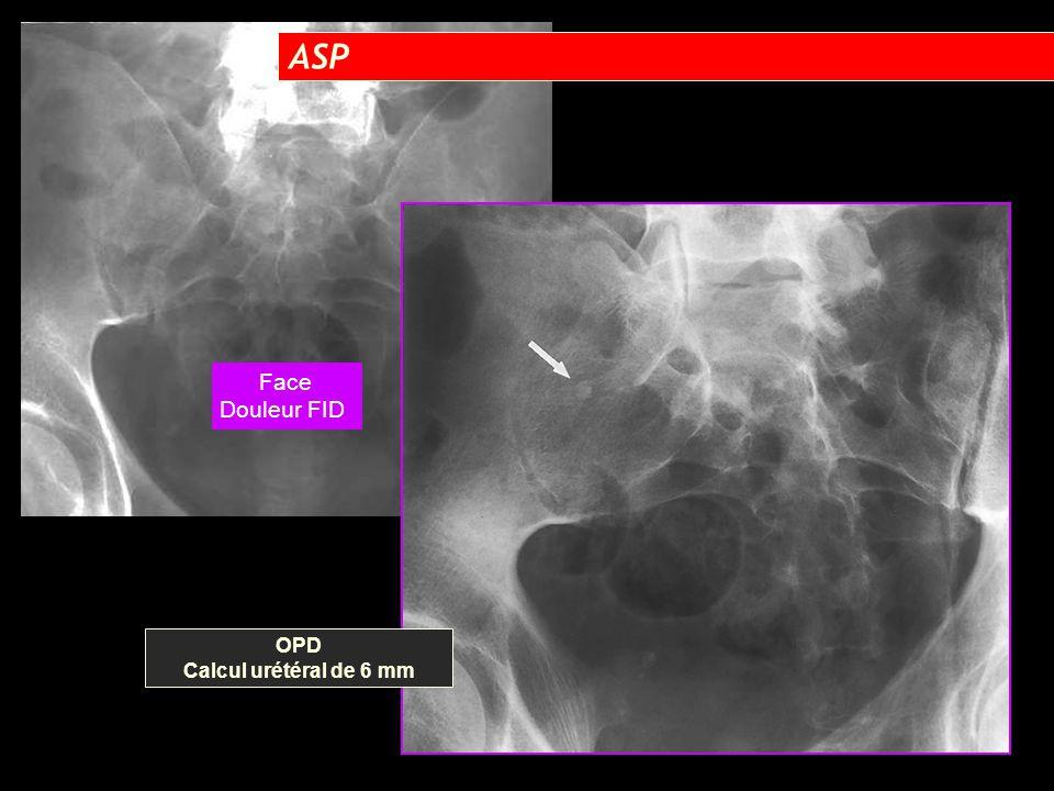 OPD Calcul urétéral de 6 mm Face Douleur FID ASP