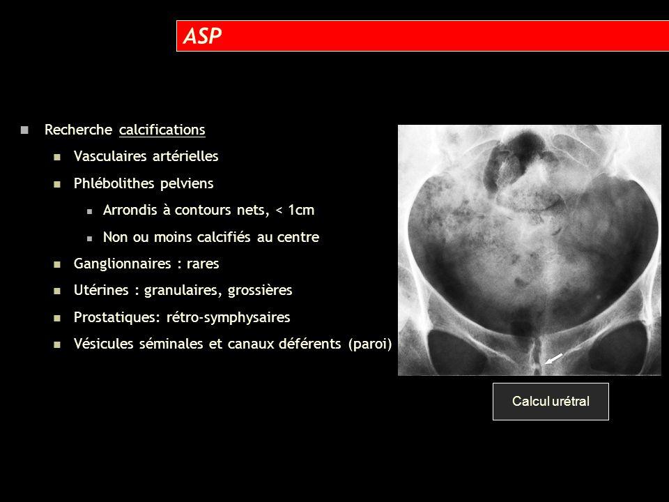 UIV 15 min Calcul méat Dilatation et oedème Déviation interne bas uretère par anévrisme iliaque interne !!!.
