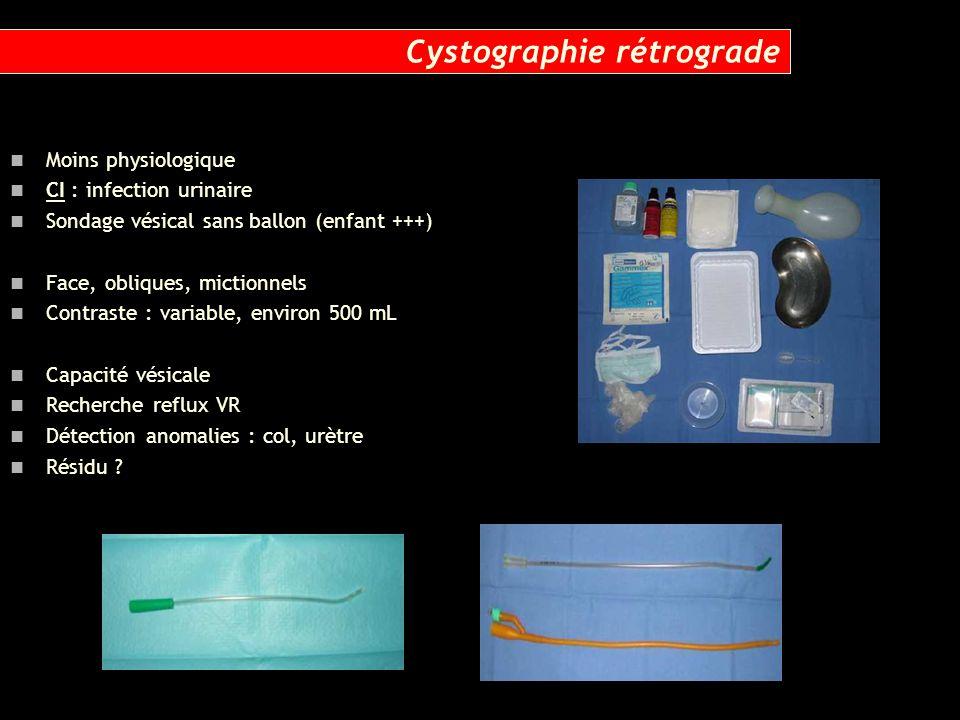 Moins physiologique CI : infection urinaire Sondage vésical sans ballon (enfant +++) Face, obliques, mictionnels Contraste : variable, environ 500 mL
