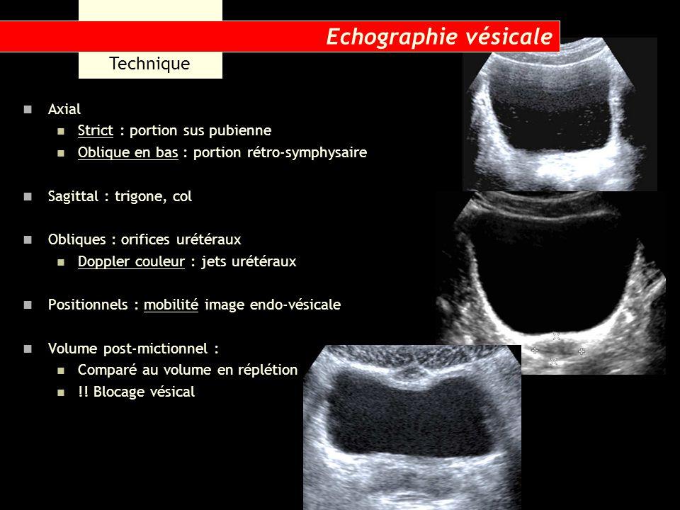 Résultats Forme : Axial : rectangle à angles arrondis ou ovalaire à grand axe antéro-post ou transversal Sagittal : triangle inversé En semi-réplétion : empreintes utérus, sigmoïde, grêle Paroi : Régulière Vessie pleine : 1 à 3 mm Limite interne nette Hypoéchogène ou échogène, homogène Sinon : 5 à 7 mm Hypoéchogène Contenu : Anéchogène Pb : échos parasites Echographie vésicale