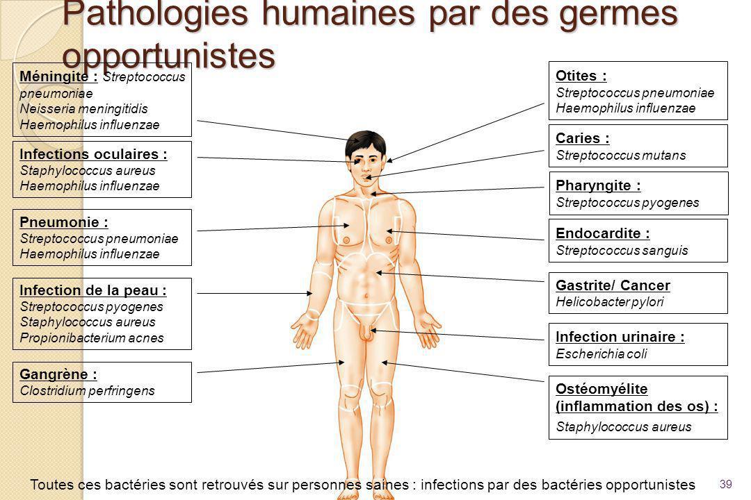 Pathologies humaines par des germes opportunistes 39 Méningite : Streptococcus pneumoniae Neisseria meningitidis Haemophilus influenzae Infections ocu