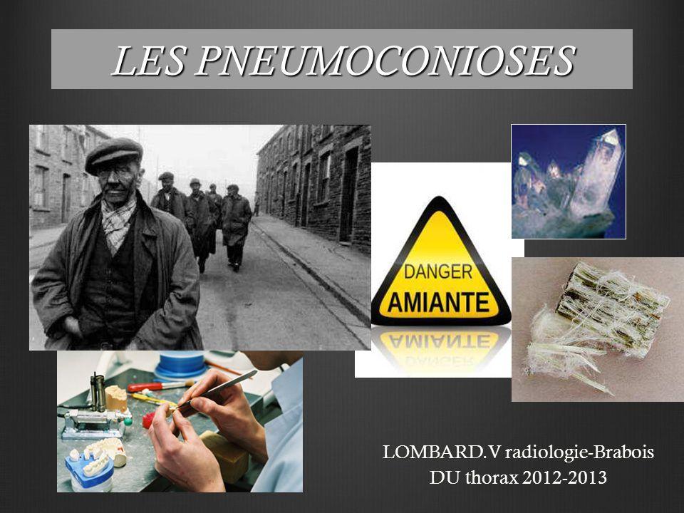 LES PNEUMOCONIOSES LOMBARD.V radiologie-Brabois DU thorax 2012-2013