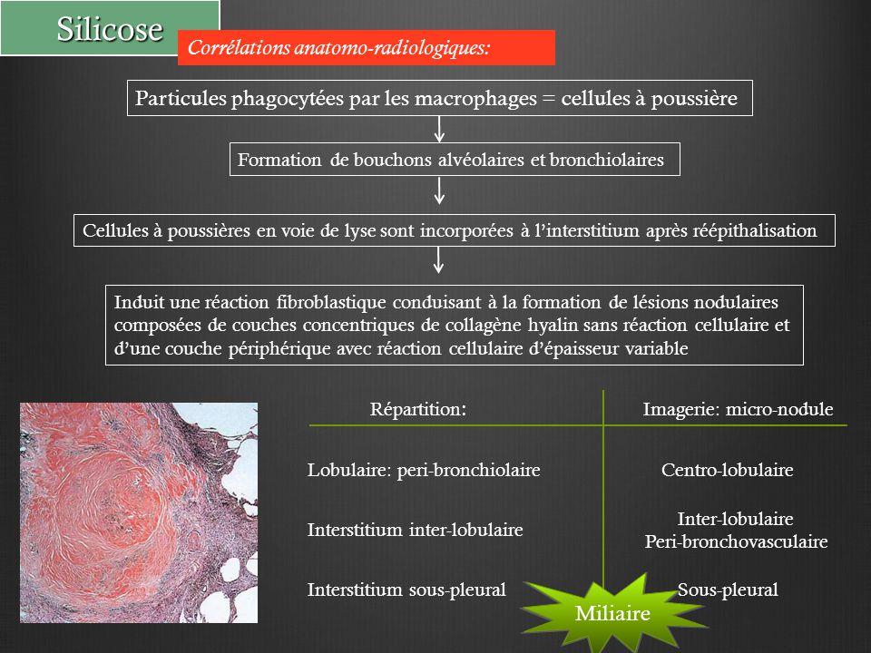 Silicose Particules phagocytées par les macrophages = cellules à poussière Corrélations anatomo-radiologiques: Formation de bouchons alvéolaires et bronchiolaires Cellules à poussières en voie de lyse sont incorporées à l'interstitium après réépithalisation Induit une réaction fibroblastique conduisant à la formation de lésions nodulaires composées de couches concentriques de collagène hyalin sans réaction cellulaire et d'une couche périphérique avec réaction cellulaire d'épaisseur variable Répartition : Interstitium inter-lobulaire Lobulaire: peri-bronchiolaire Interstitium sous-pleural Imagerie: micro-nodule Centro-lobulaire Inter-lobulaire Peri-bronchovasculaire Sous-pleural Miliaire