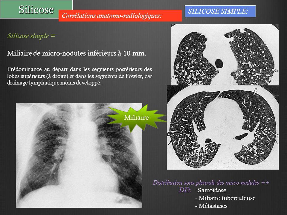 Silicose Corrélations anatomo-radiologiques: Silicose simple = Miliaire de micro-nodules inférieurs à 10 mm. Prédominance au départ dans les segments