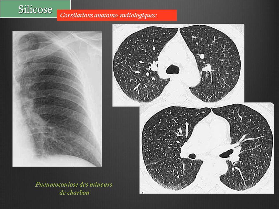 Silicose Corrélations anatomo-radiologiques: Pneumoconiose des mineurs de charbon