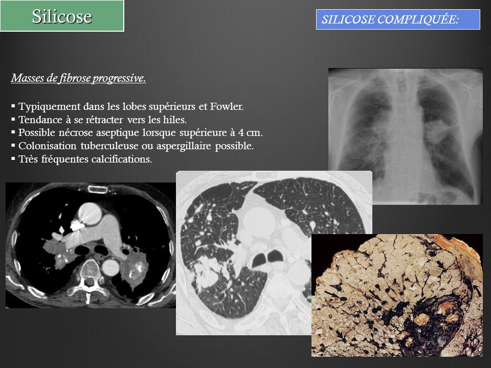 Silicose SILICOSE COMPLIQUÉE: Masses de fibrose progressive.  Typiquement dans les lobes supérieurs et Fowler.  Tendance à se rétracter vers les hil