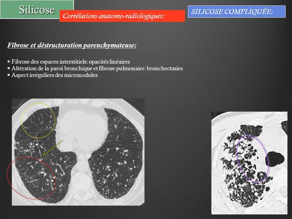 Silicose Corrélations anatomo-radiologiques: SILICOSE COMPLIQUÉE: Fibrose et déstructuration parenchymateuse:  Fibrose des espaces interstitiels: opacités linéaires  Altération de la paroi bronchique et fibrose pulmonaire: bronchectasies  Aspect irréguliers des micronodules