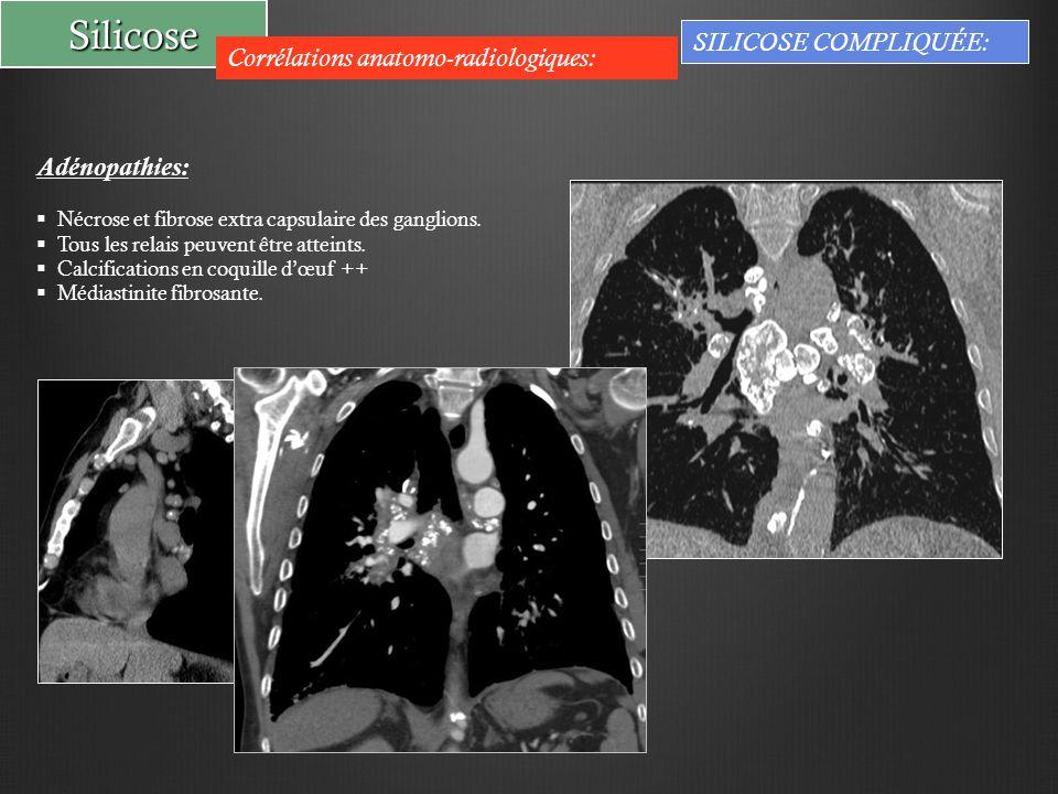 Silicose Corrélations anatomo-radiologiques: SILICOSE COMPLIQUÉE: Adénopathies:  Nécrose et fibrose extra capsulaire des ganglions.  Tous les relais