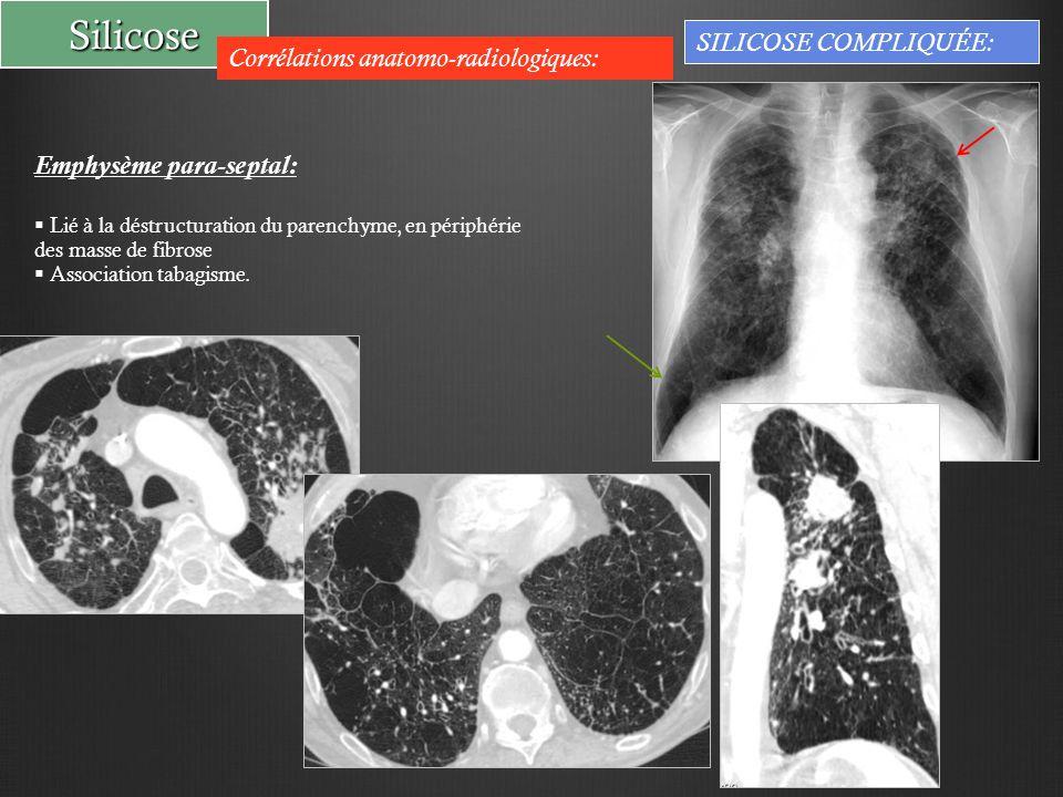 Silicose Corrélations anatomo-radiologiques: SILICOSE COMPLIQUÉE: Emphysème para-septal:  Lié à la déstructuration du parenchyme, en périphérie des masse de fibrose  Association tabagisme.