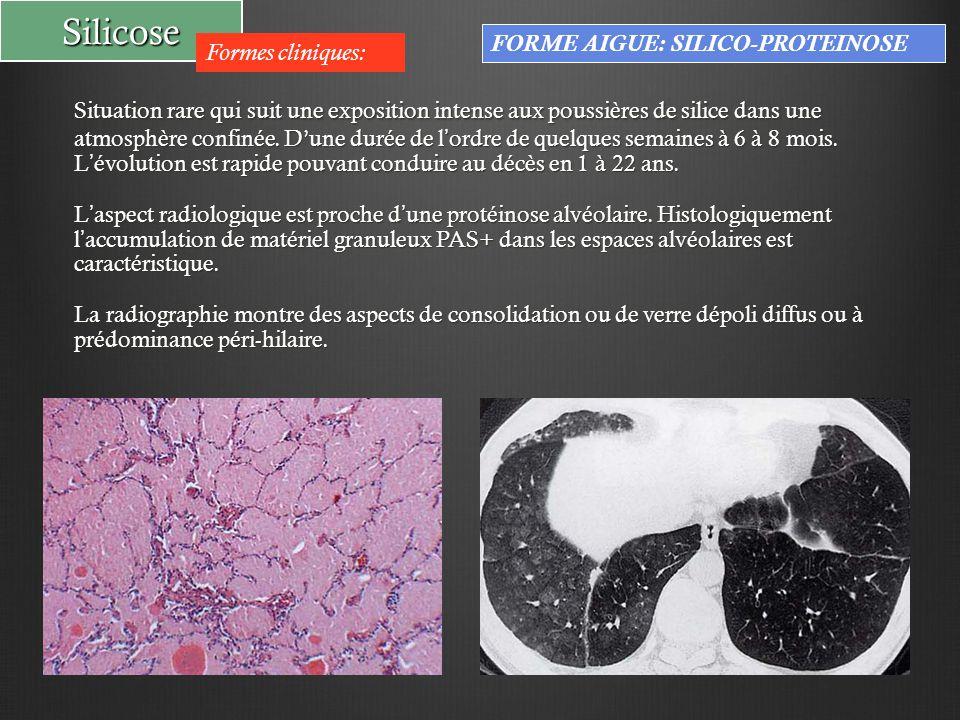 Silicose Formes cliniques: FORME AIGUE: SILICO-PROTEINOSE Situation rare qui suit une exposition intense aux poussières de silice dans une atmosphère confinée.
