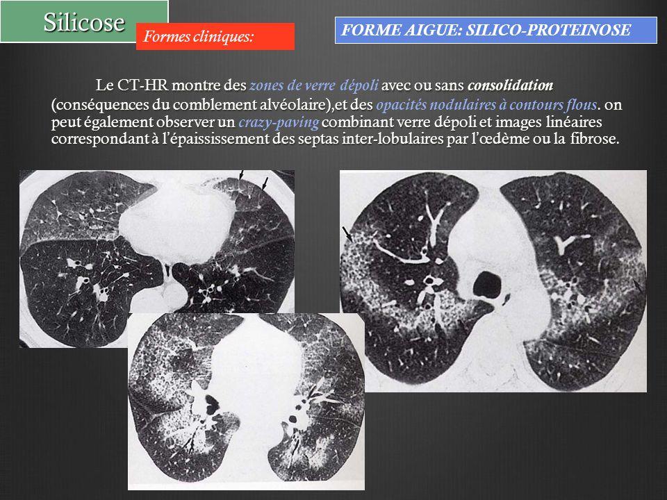 Silicose Formes cliniques: FORME AIGUE: SILICO-PROTEINOSE Le CT-HR montre des avec ou sans consolidation (conséquences du comblement alvéolaire),et de