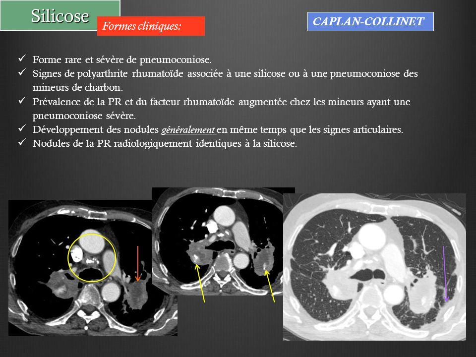 Silicose Formes cliniques: CAPLAN-COLLINET Forme rare et sévère de pneumoconiose. Signes de polyarthrite rhumatoïde associée à une silicose ou à une p