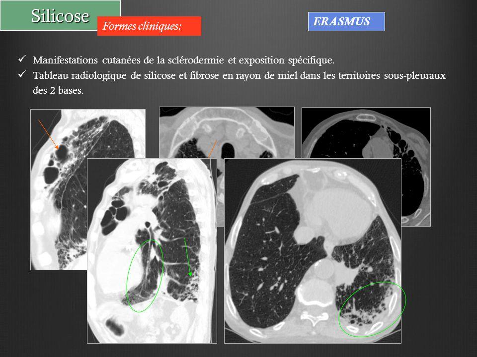Silicose Formes cliniques: ERASMUS Manifestations cutanées de la sclérodermie et exposition spécifique. Tableau radiologique de silicose et fibrose en