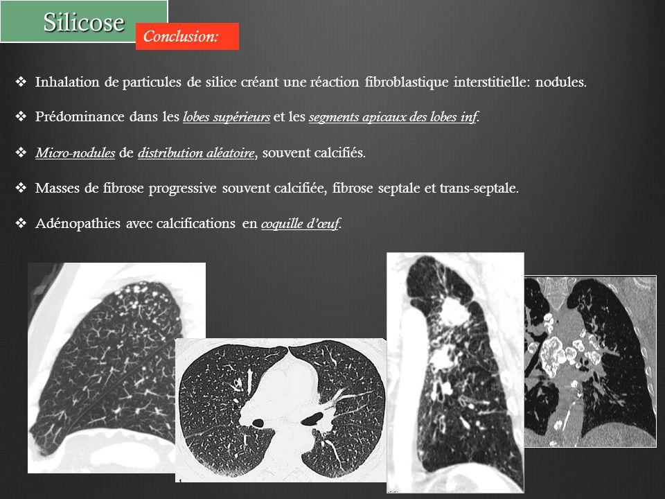 Silicose Conclusion:  Inhalation de particules de silice créant une réaction fibroblastique interstitielle: nodules.  Prédominance dans les lobes su