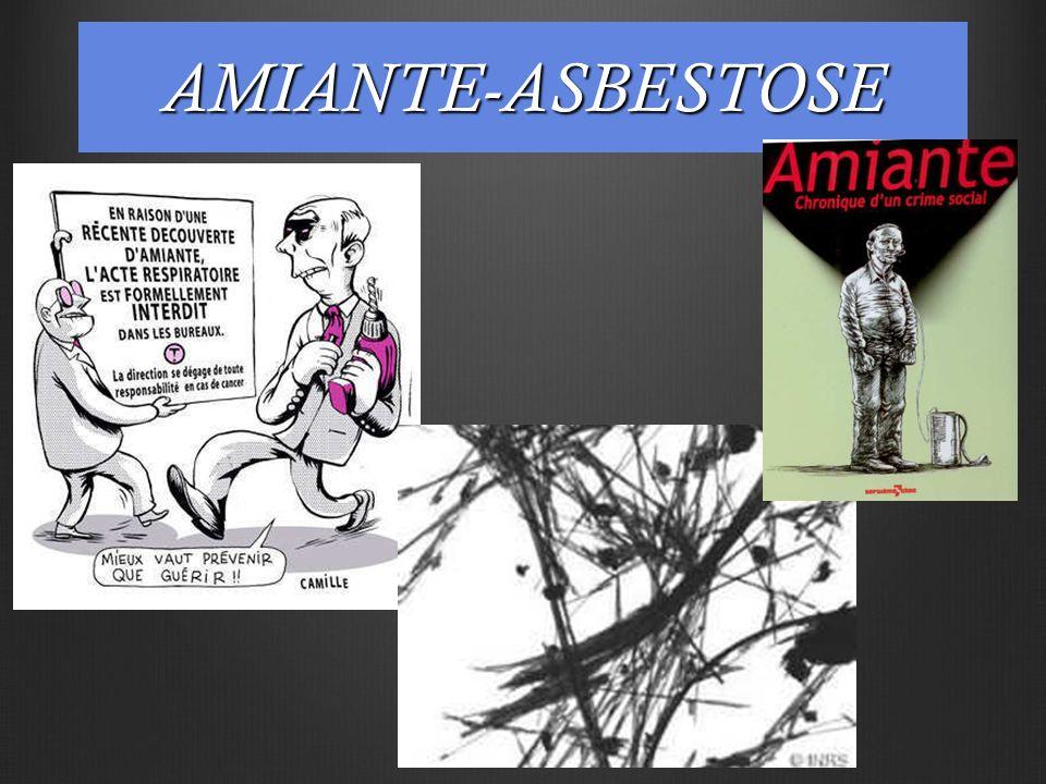 AMIANTE-ASBESTOSE