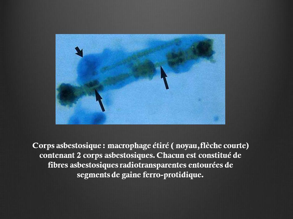 Corps asbestosique : macrophage étiré ( noyau,flèche courte) contenant 2 corps asbestosiques. Chacun est constitué de fibres asbestosiques radiotransp