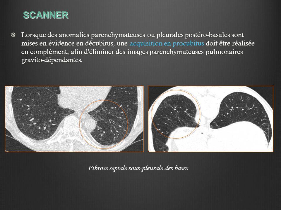 SCANNER Lorsque des anomalies parenchymateuses ou pleurales postéro-basales sont mises en évidence en décubitus, une doit être réalisée en complément,