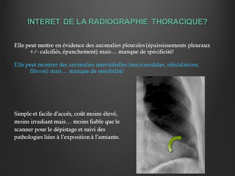 INTERET DE LA RADIOGRAPHIE THORACIQUE.