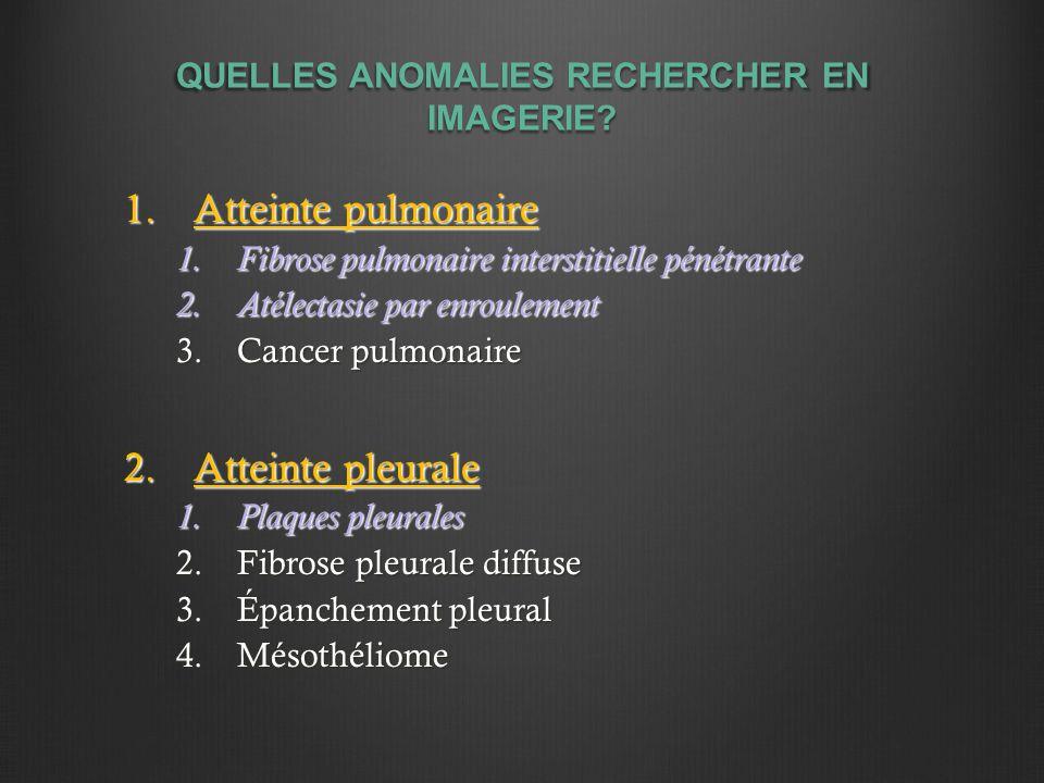 QUELLES ANOMALIES RECHERCHER EN IMAGERIE? 1.Atteinte pulmonaire 1.Fibrose pulmonaire interstitielle pénétrante 2.Atélectasie par enroulement 3.Cancer