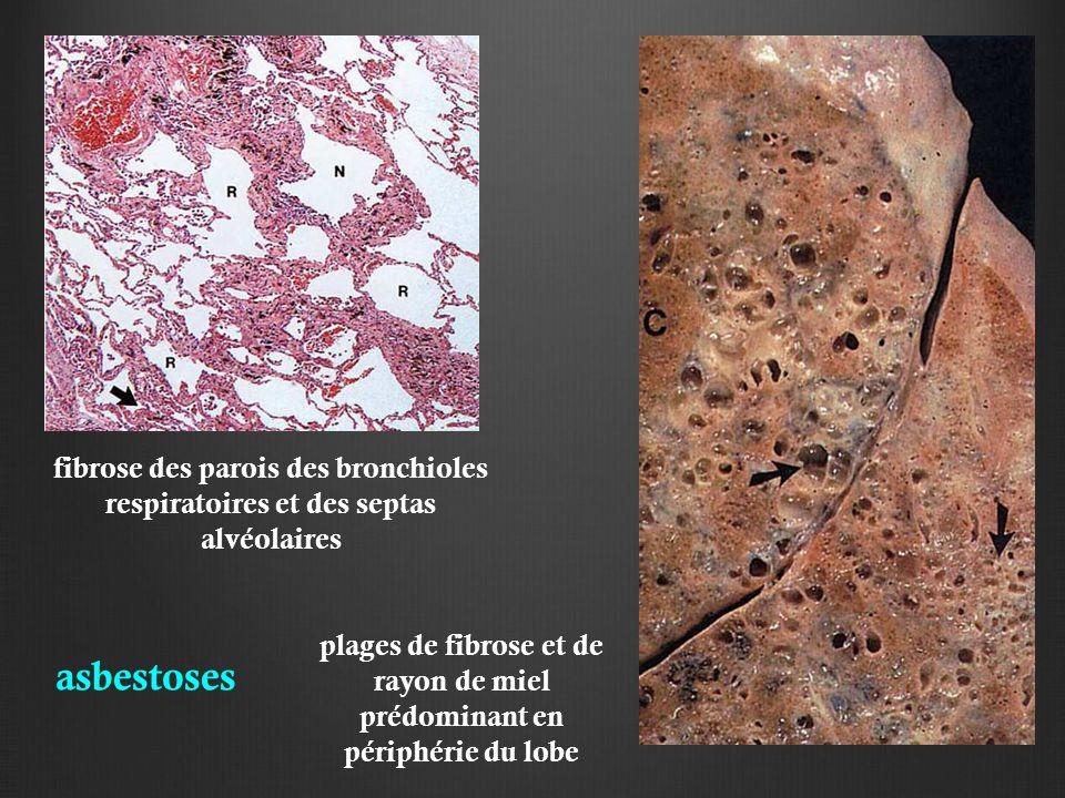 asbestoses fibrose des parois des bronchioles respiratoires et des septas alvéolaires plages de fibrose et de rayon de miel prédominant en périphérie du lobe