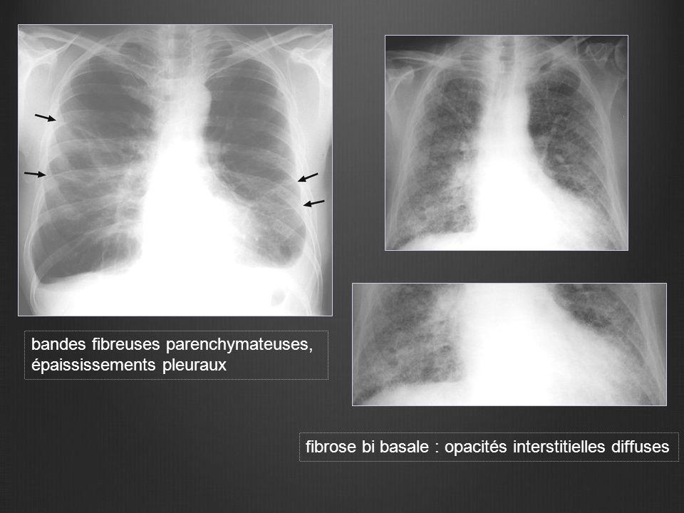 bandes fibreuses parenchymateuses, épaississements pleuraux fibrose bi basale : opacités interstitielles diffuses