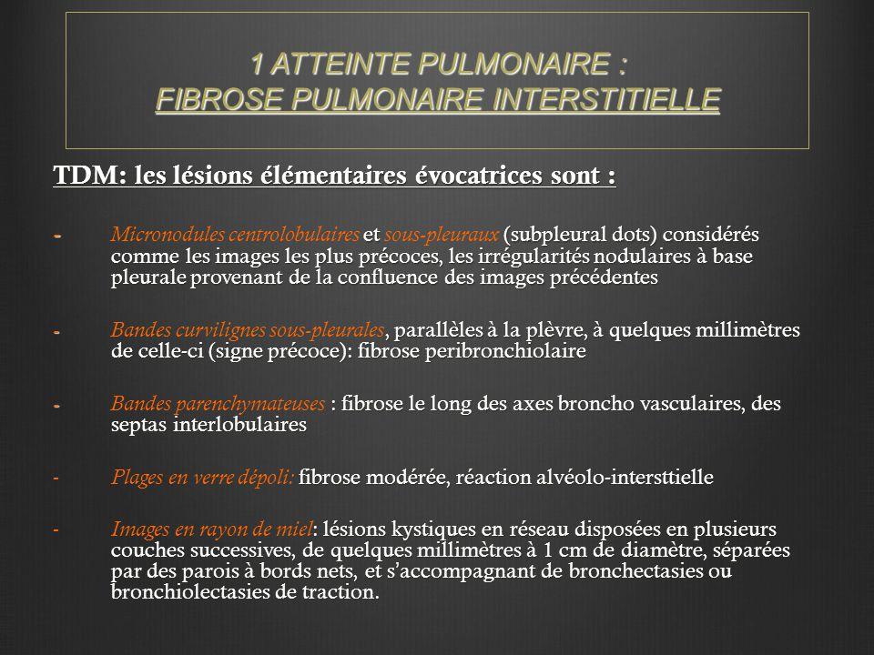 1 ATTEINTE PULMONAIRE : FIBROSE PULMONAIRE INTERSTITIELLE TDM: les lésions élémentaires évocatrices sont : - et (subpleural dots) considérés comme les