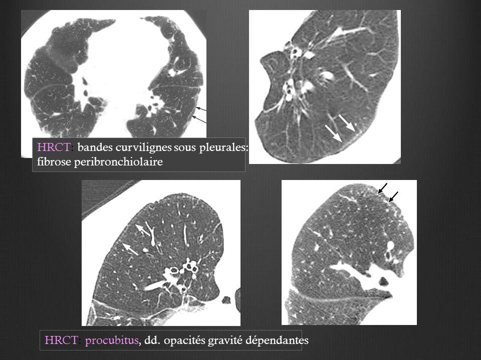 HRCT: procubitus, dd. opacités gravité dépendantes HRCT: bandes curvilignes sous pleurales: fibrose peribronchiolaire