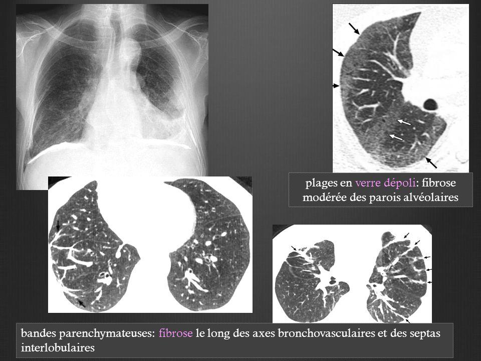 plages en verre dépoli: fibrose modérée des parois alvéolaires bandes parenchymateuses: fibrose le long des axes bronchovasculaires et des septas interlobulaires